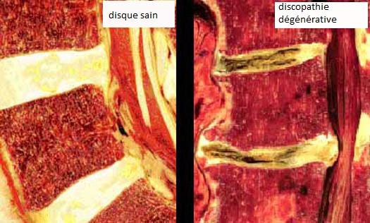 disque sain et discopathie dégénérative