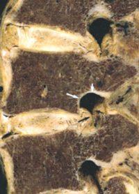 foramen intervertébral