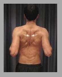 exercice renforcement rhomboides