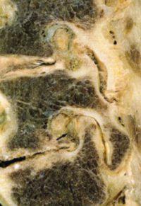 sténose latérale