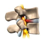 hernie discale vue latérale